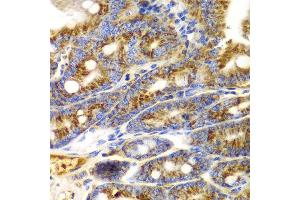 Immunohistochemistry (IHC) image for anti-TNFSF11 antibody (Tumor Necrosis Factor (Ligand) Superfamily, Member 11) (ABIN1875141)