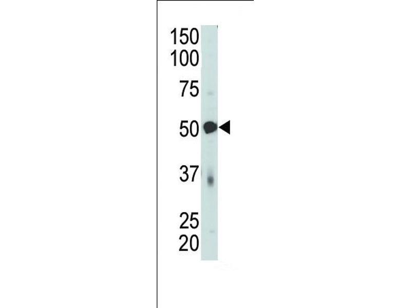 Western Blotting (WB) image for anti-PDK4 antibody (Pyruvate Dehydrogenase Kinase, Isozyme 4) (C-Term) (ABIN2496022)