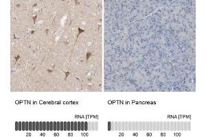 Immunohistochemistry (Paraffin-embedded Sections) (IHC (p)) image for anti-Optineurin (OPTN) antibody (ABIN4341482)
