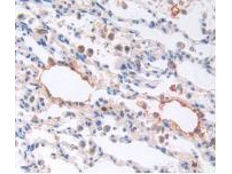 Immunohistochemistry (Paraffin-embedded Sections) (IHC (p)) image for anti-Brain Natriuretic Peptide (BNP) antibody (ABIN5662191)