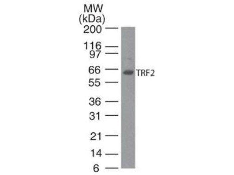 Western Blotting (WB) image for anti-TBP-Like 1 (TBPL1) antibody (ABIN252470)
