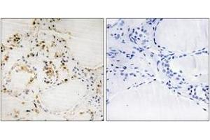 Immunohistochemistry (IHC) image for anti-BCL2 antibody (B-Cell CLL/lymphoma 2) (pSer87) (ABIN1531302)