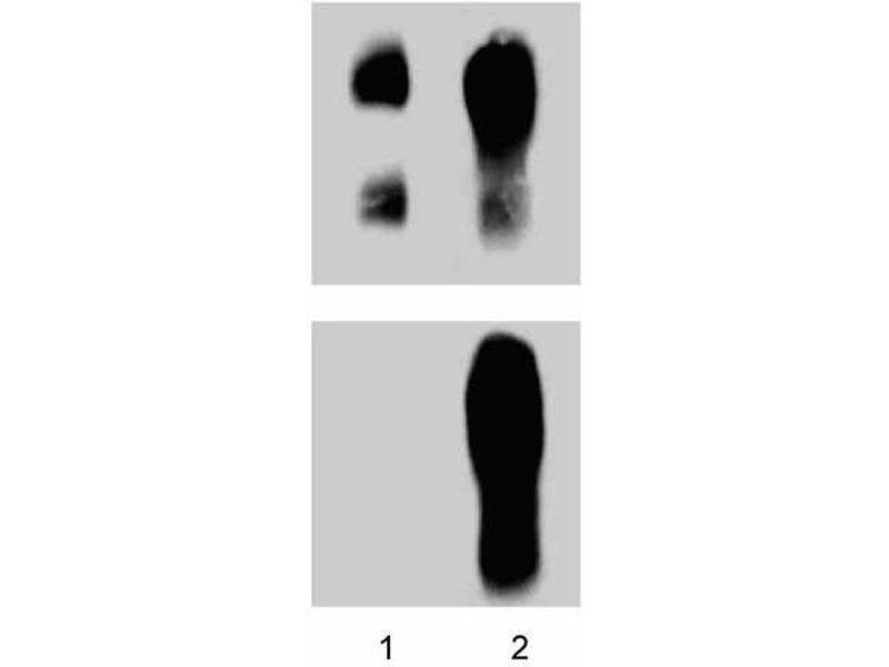 image for anti-Catenin (Cadherin-Associated Protein), delta 1 (CTNND1) (pTyr228) antibody (ABIN968864)