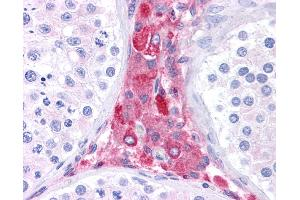 Immunohistochemistry (IHC) image for anti-beta-Site APP-Cleaving Enzyme 1 (BACE) (N-Term) antibody (ABIN2782766)