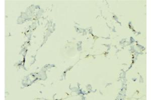Immunohistochemistry (IHC) image for anti-Nucleotide-Binding Oligomerization Domain Containing 1 (NOD1) antibody (ABIN6263678)