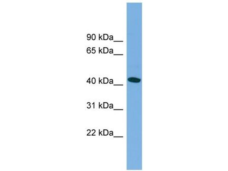 Western Blotting (WB) image for anti-Microtubule-Associated Protein tau (MAPT) (Middle Region) antibody (ABIN2783224)