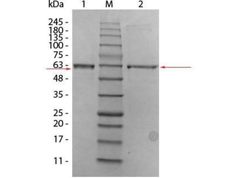 Image no. 1 for V-Akt Murine Thymoma Viral Oncogene Homolog 2 (AKT2) protein (ABIN5624569)