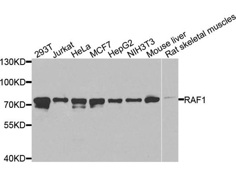 Image no. 1 for anti-V-Raf-1 Murine Leukemia Viral Oncogene Homolog 1 (RAF1) antibody (ABIN6566510)