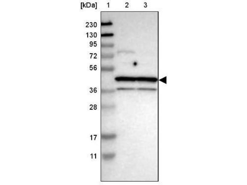 Western Blotting (WB) image for anti-TAR DNA Binding Protein (TARDBP) antibody (ABIN4358265)