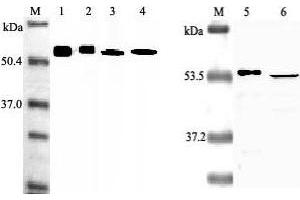 Western Blotting (WB) image for anti-Nicotinamide phosphoribosyltransferase (NAMPT) antibody (ABIN1169028)