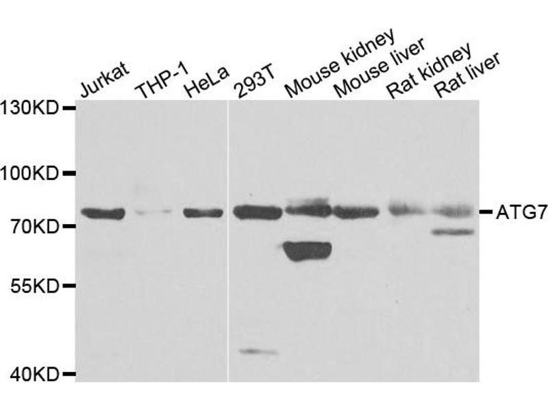 Image no. 1 for anti-ATG7 Autophagy Related 7 Homolog (S. Cerevisiae) (ATG7) antibody (ABIN6566646)