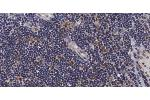 Immunohistochemistry (IHC) image for anti-Mitogen-Activated Protein Kinase Kinase Kinase 5 (MAP3K5) (pSer966) antibody (ABIN6255571)