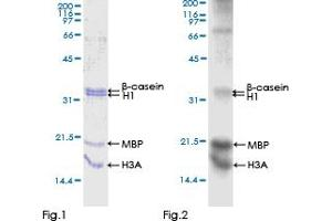Image no. 1 for Cyclin-Dependent Kinase 18 (CDK18) (AA 1-472) protein (GST tag) (ABIN1314378)