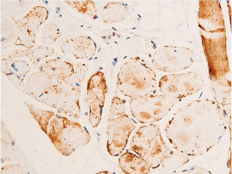 Immunohistochemistry (IHC) image for anti-Checkpoint Kinase 1 (CHEK1) (pSer280) antibody (ABIN6255160)