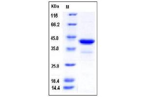 Image no. 1 for Poly(rC) Binding Protein 1 (PCBP1) (AA 2-356) protein (His tag) (ABIN2004447)