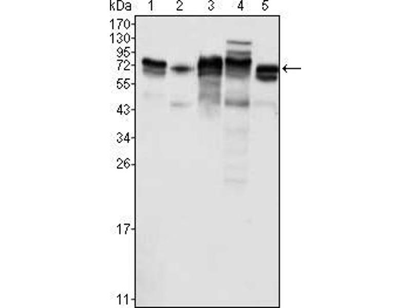 Western Blotting (WB) image for anti-Metadherin (MTDH) antibody (ABIN969496)