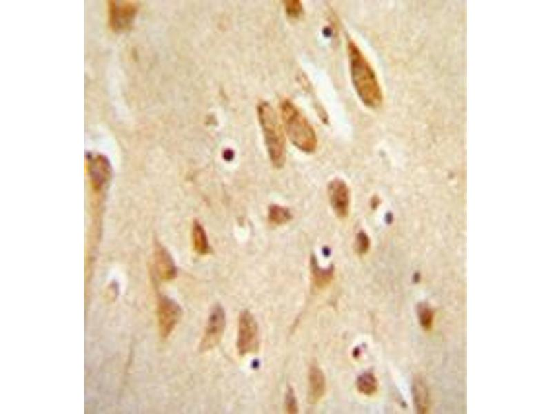 Immunohistochemistry (Paraffin-embedded Sections) (IHC (p)) image for anti-JNK antibody (Mitogen-Activated Protein Kinase 8) (AA 162-199) (ABIN953314)