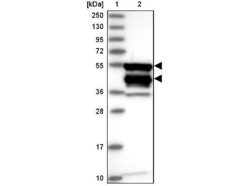 Western Blotting (WB) image for anti-Caspase Recruitment Domain Family, Member 8 (CARD8) antibody (ABIN4287924)