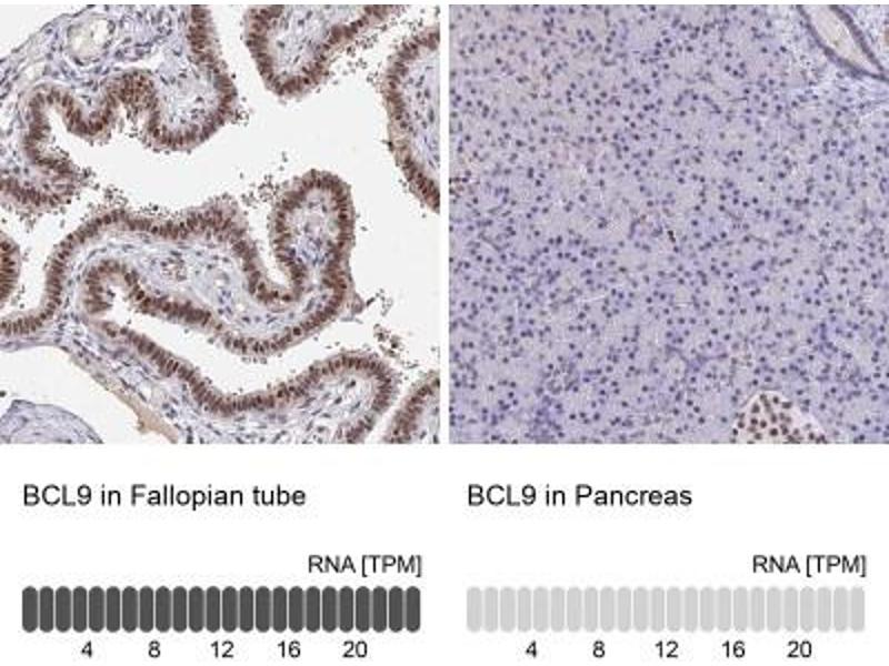 Immunohistochemistry (Paraffin-embedded Sections) (IHC (p)) image for anti-B-Cell CLL/lymphoma 9 (BCL9) antibody (ABIN4283625)