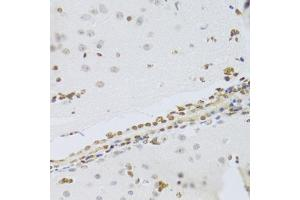 Immunohistochemistry (Paraffin-embedded Sections) (IHC (p)) image for anti-High-Mobility Group Box 1 (HMGB1) antibody (ABIN2973987)
