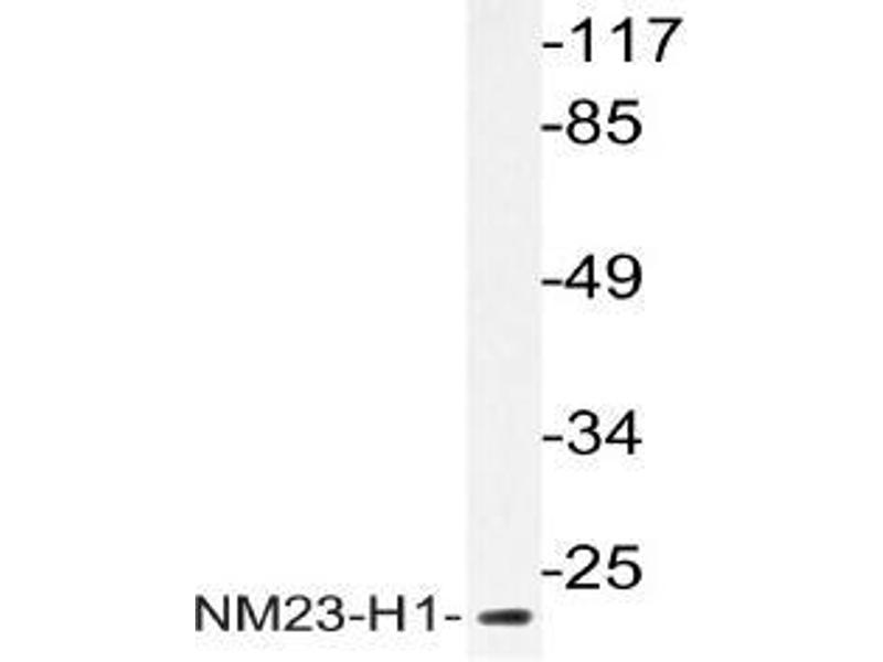 Western Blotting (WB) image for anti-Non-Metastatic Cells 1, Protein (NM23A) Expressed in (NME1) antibody (ABIN498563)