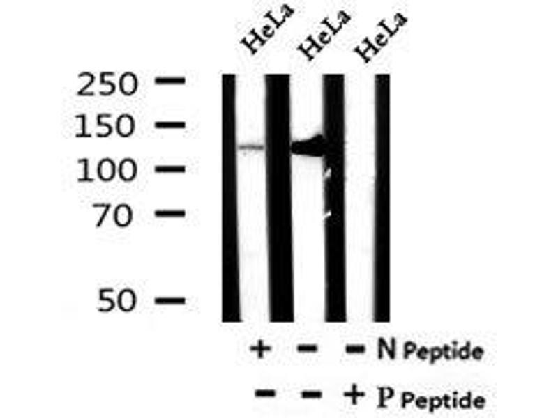 Image no. 2 for anti-Inositol Polyphosphate Phosphatase-Like 1 (INPPL1) (pTyr886) antibody (ABIN6269639)