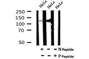 Image no. 2 for anti-Inositol Polyphosphate Phosphatase-Like 1 (INPPL1) (pTyr886) antibody (ABIN6269639)