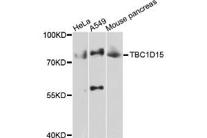 Image no. 2 for anti-TBC1 Domain Family, Member 15 (TBC1D15) antibody (ABIN4905372)