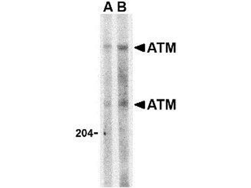 Western Blotting (WB) image for anti-ATM antibody (Ataxia Telangiectasia Mutated) (C-Term) (ABIN499359)