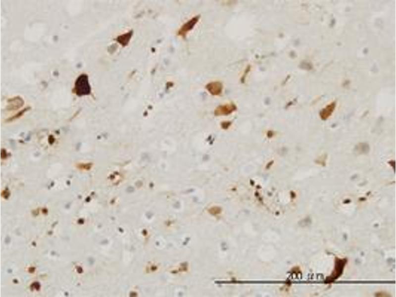 Immunohistochemistry (Paraffin-embedded Sections) (IHC (p)) image for anti-Pleiotrophin (PTN) (AA 45-155) antibody (ABIN394508)