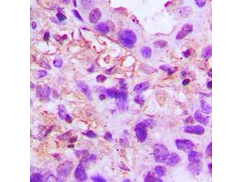Image no. 1 for anti-Tumor Necrosis Factor-Inducible Protein 6 (TNFAIP6) (Center) antibody (ABIN2707216)