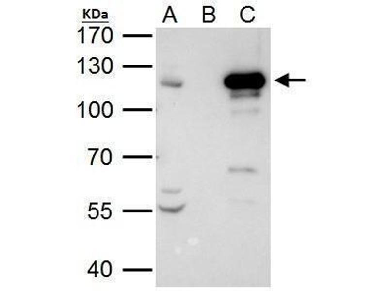 Immunoprecipitation (IP) image for anti-Signal Transducer and Activator of Transcription 2, 113kDa (STAT2) (C-Term) antibody (ABIN2855558)