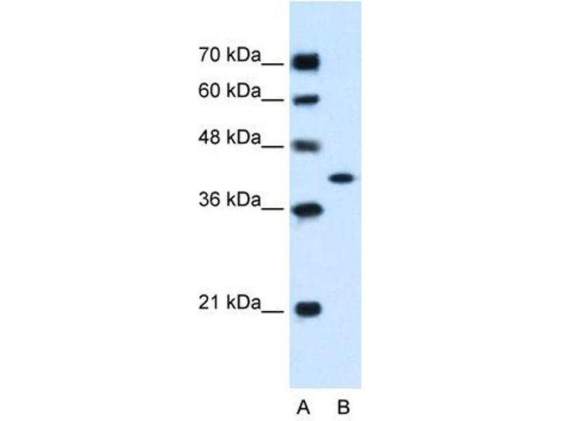 Western Blotting (WB) image for anti-Glutamic-Oxaloacetic Transaminase 2, Mitochondrial (Aspartate Aminotransferase 2) (GOT2) (C-Term) antibody (ABIN310473)