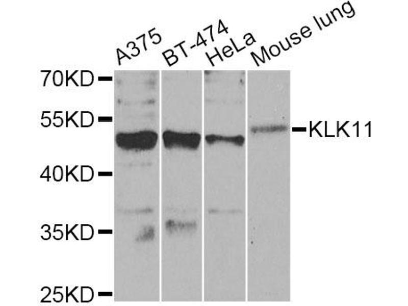 Western Blotting (WB) image for anti-Kallikrein 11 (KLK11) antibody (ABIN6570592)