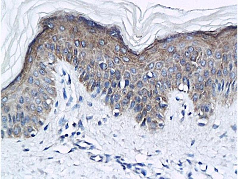 Immunohistochemistry (IHC) image for anti-Kallikrein 5 (KLK5) (AA 110-160) antibody (ABIN759086)