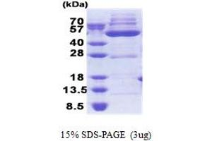 Image no. 1 for 3-Oxoacyl-ACP Synthase, Mitochondrial (OXSM) (AA 28-459) protein (His tag) (ABIN5853265)