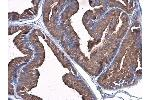 Immunohistochemistry (IHC) image for anti-PLG antibody (Plasminogen) (Center) (ABIN2855505)