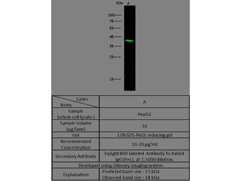Western Blotting (WB) image for anti-Arginase, Liver (ARG1) (AA 1-322) antibody (ABIN1998839)