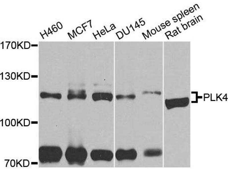 Image no. 3 for anti-Polo-Like Kinase 4 (PLK4) antibody (ABIN6572051)