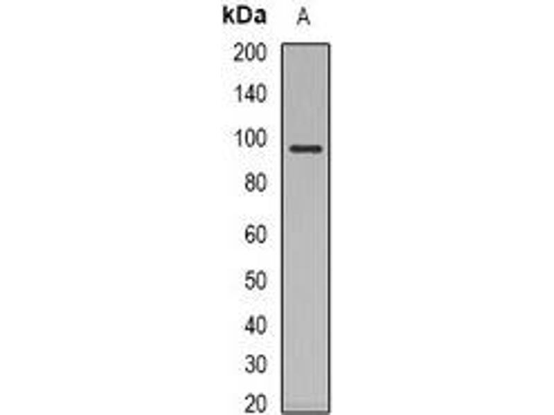 Western Blotting (WB) image for anti-Nuclear Receptor Subfamily 3, Group C, Member 1 (Glucocorticoid Receptor) (NR3C1) antibody (ABIN2957584)