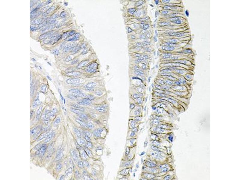 Image no. 1 for anti-ATPase, Na+/K+ Transporting, beta 1 Polypeptide (ATP1B1) antibody (ABIN2561282)