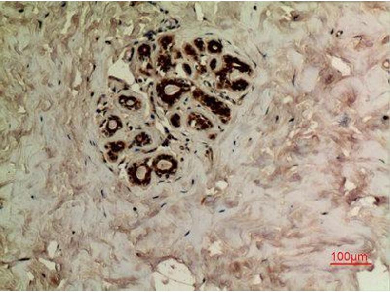Immunohistochemistry (IHC) image for anti-TUBA1A antibody (Tubulin, alpha 1a) (acLys40) (ABIN3181895)