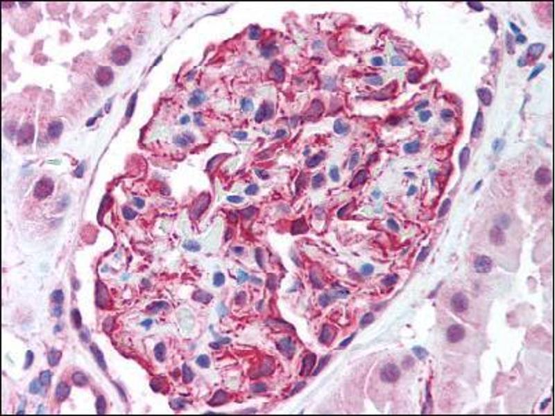 image for anti-AKT2 antibody (V-Akt Murine Thymoma Viral Oncogene Homolog 2) (C-Term) (ABIN302641)