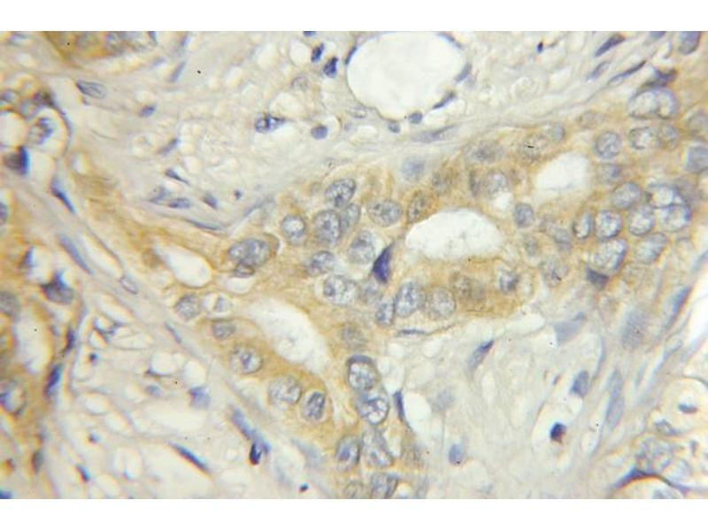 Immunohistochemistry (IHC) image for anti-Extracellular Matrix Protein 1 (ECM1) antibody (ABIN2928444)