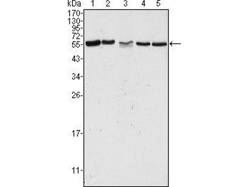 Western Blotting (WB) image for anti-P21-Activated Kinase 2 (PAK2) antibody (ABIN969338)