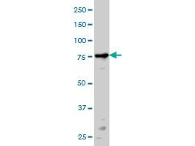 Western Blotting (WB) image for anti-Protein Kinase C, alpha (PKCa) (AA 563-672), (partial) antibody (ABIN562379)