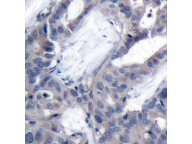 Immunohistochemistry (IHC) image for anti-Mitogen-Activated Protein Kinase Kinase 2 (MAP2K2) (pThr394) antibody (ABIN1870344)