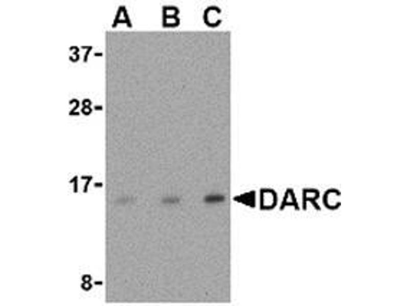 Western Blotting (WB) image for anti-Duffy Blood Group, Chemokine Receptor (DARC) (N-Term) antibody (ABIN499712)