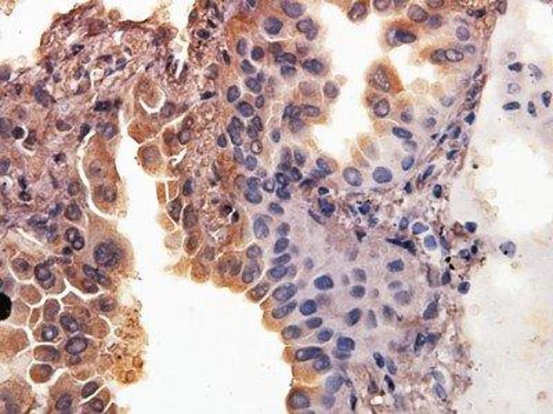 Immunohistochemistry (Paraffin-embedded Sections) (IHC (p)) image for anti-Second Mitochondria-Derived Activator of Caspase (DIABLO) antibody (ABIN252164)