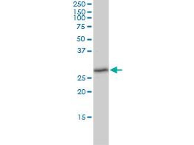 Western Blotting (WB) image for anti-Thioredoxin Domain Containing 9 (TXNDC9) (AA 1-226) antibody (ABIN564405)
